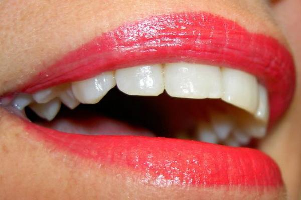 Избјељивање зуба свјетиљка цијена