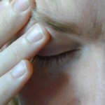 Upala sinusa i prirodno lečenje