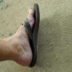 Gljivice na noktima nogu i ruku lečenje