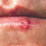 Herpes na usni lečenje
