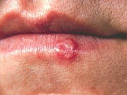 herpes na donjoj usni