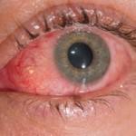 Vidova trava ili vidac za vid upalu oka i nosne sluznice