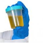 Bakterije u mokraći urinu simptomi