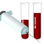 Kako povećati hemoglobin u krvi