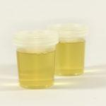 Kako izlečiti bakterije u urinu – prirodno lečenje čajevima po receptu travara