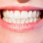Kako izlečiti žvale na usnama prirodnim putem