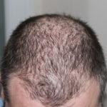 Sok od luka – kako da kosa ponovo raste kao pre