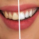 Kako ukloniti zubni kamenac kod kuće, a treba vam jedan jedini sastojak