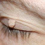 Papilomi fibromi i bradavice nestaju kao rukom odneseni